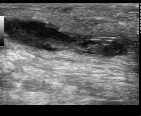 Pilonidal sinus with abscess formation | Image
