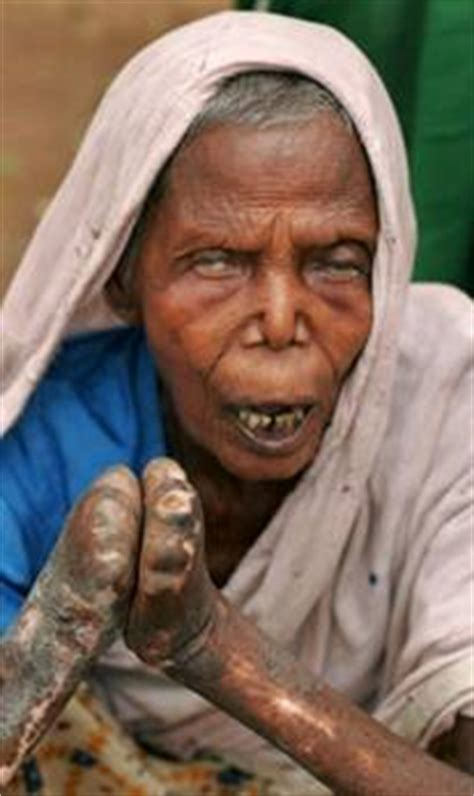 Leprosy Project